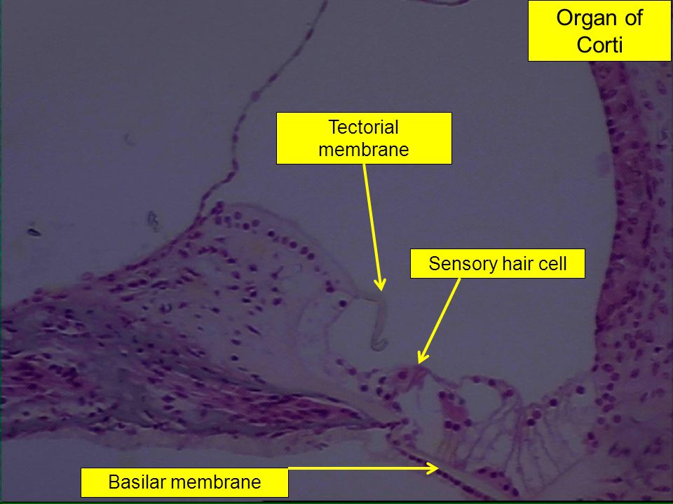 Organ of Corti Tectorial membrane Sensory hair cell Basilar membrane