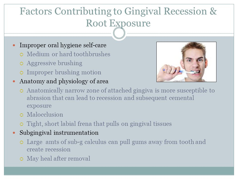 Factors Contributing to Gingival Recession & Root Exposure