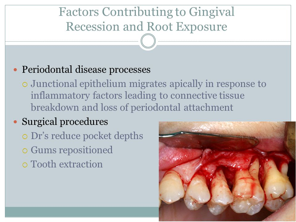 Factors Contributing to Gingival Recession and Root Exposure