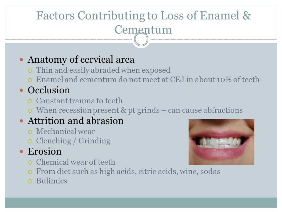 Factors Contributing to Loss of Enamel & Cementum