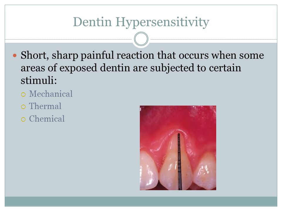 Dentin Hypersensitivity