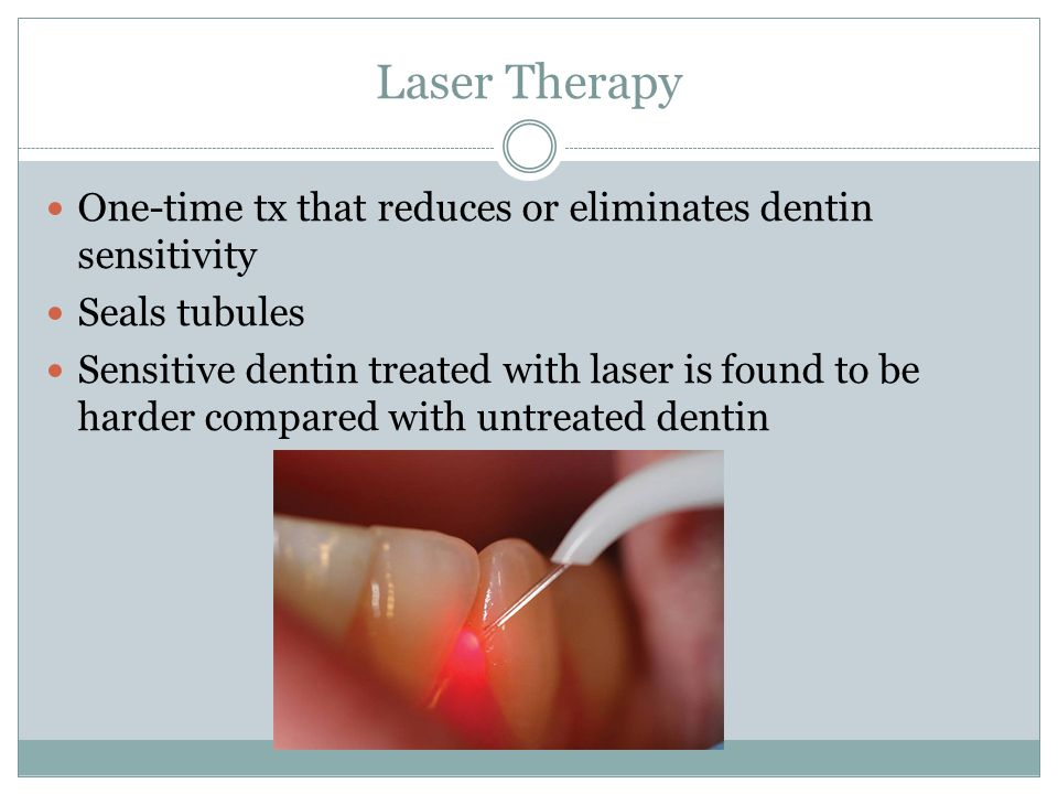 Laser Therapy One-time tx that reduces or eliminates dentin sensitivity. Seals tubules.