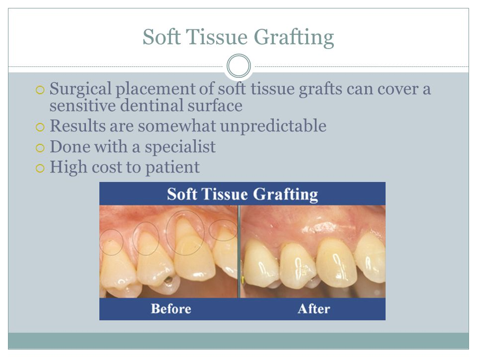 Soft Tissue Grafting Surgical placement of soft tissue grafts can cover a sensitive dentinal surface.