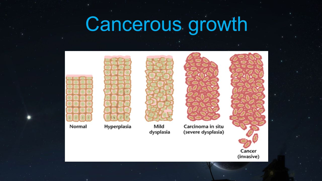 Cancerous growth