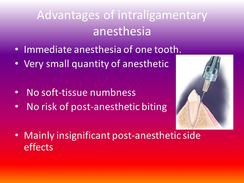 Advantages of intraligamentary anesthesia