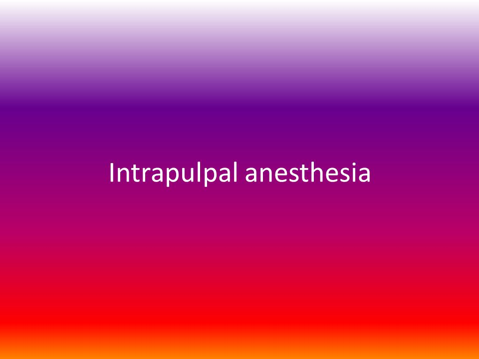 Intrapulpal anesthesia