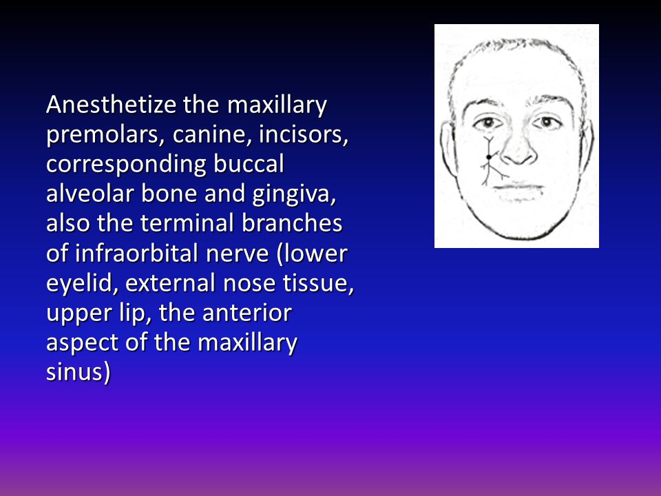 Anesthetize the maxillary premolars, canine, incisors, corresponding buccal alveolar bone and gingiva, also the terminal branches of infraorbital nerve (lower eyelid, external nose tissue, upper lip, the anterior aspect of the maxillary sinus)