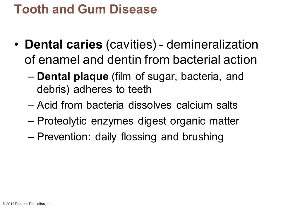 Tooth and Gum Disease Dental caries (cavities) - demineralization of enamel and dentin from bacterial action.