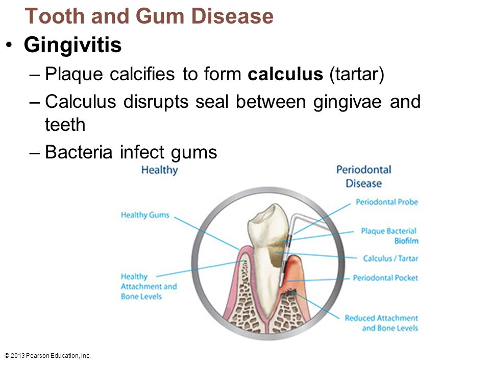 Tooth and Gum Disease Gingivitis