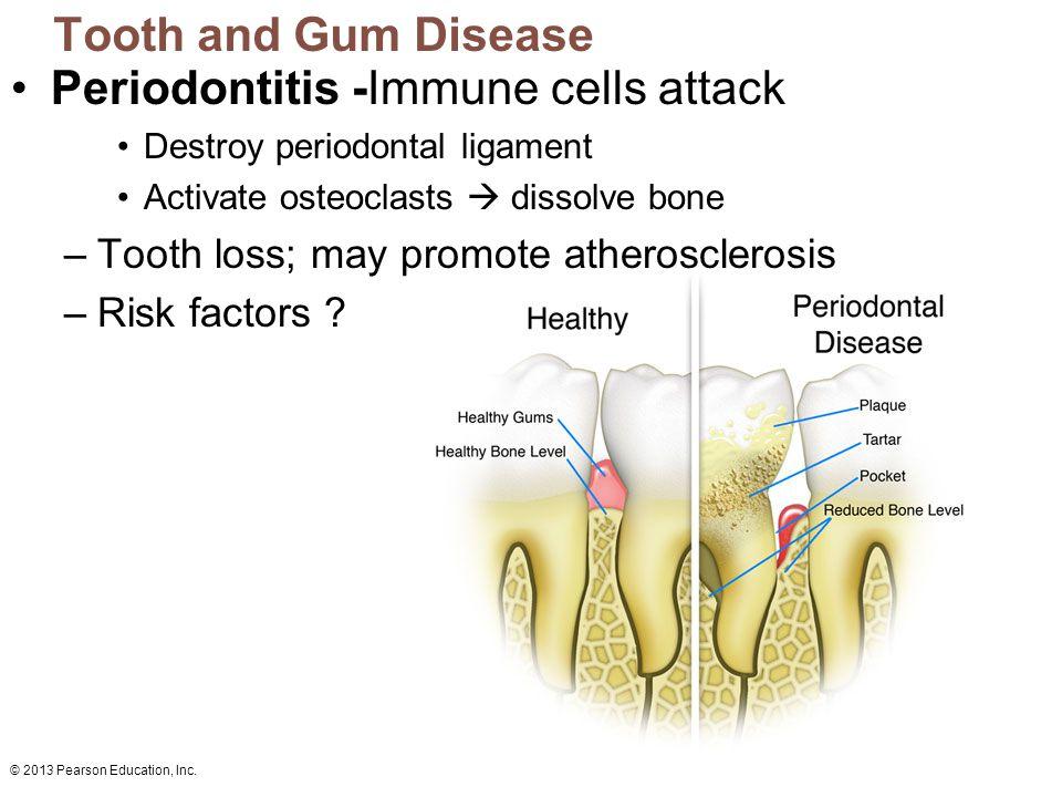 Periodontitis -Immune cells attack