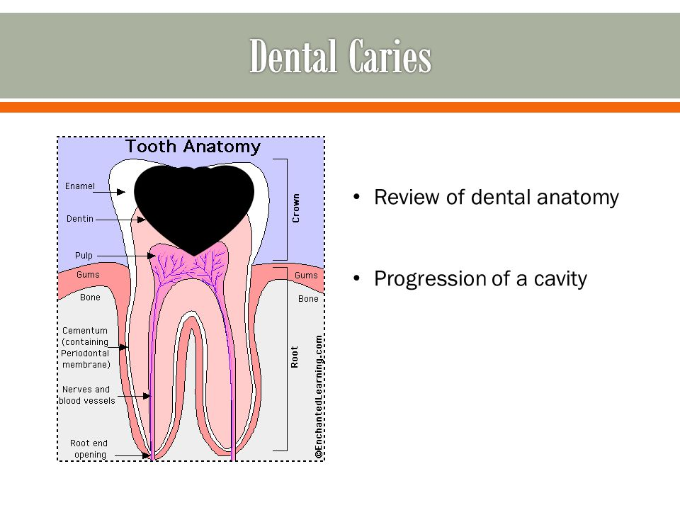 Dental Caries Review of dental anatomy Progression of a cavity