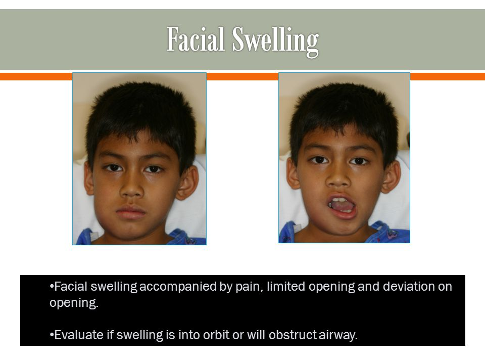 Facial Swelling Facial swelling accompanied by pain, limited opening and deviation on opening.