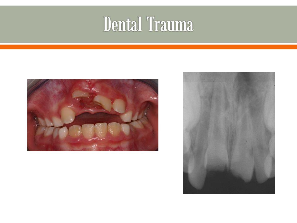 Dental Trauma