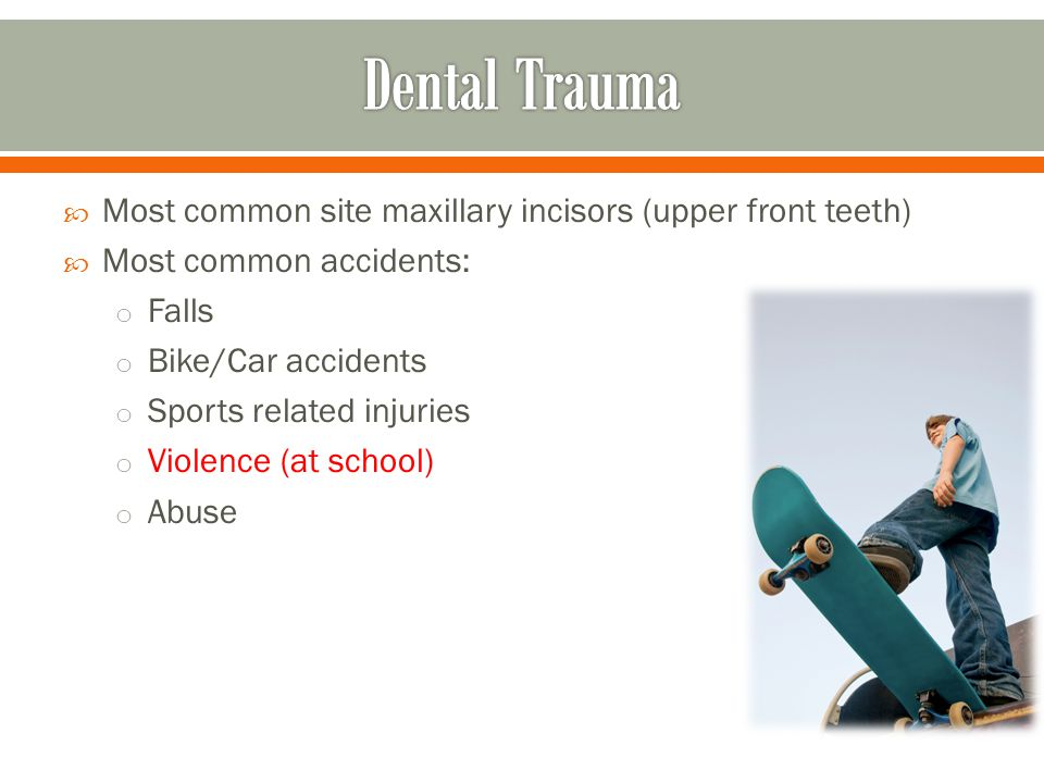 Dental Trauma Most common site maxillary incisors (upper front teeth)