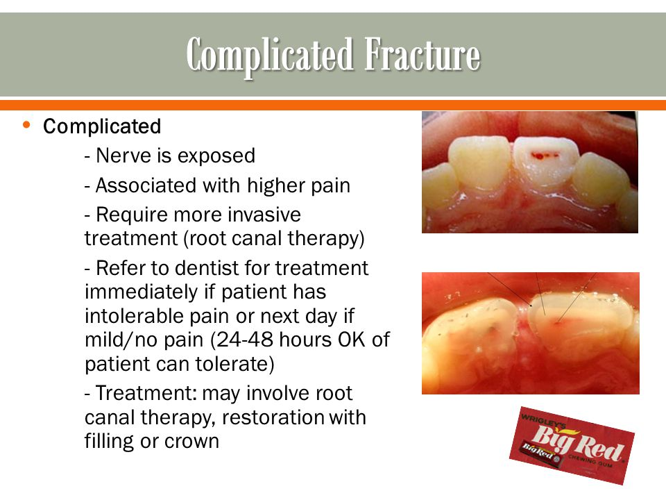 Complicated Fracture Complicated - Nerve is exposed
