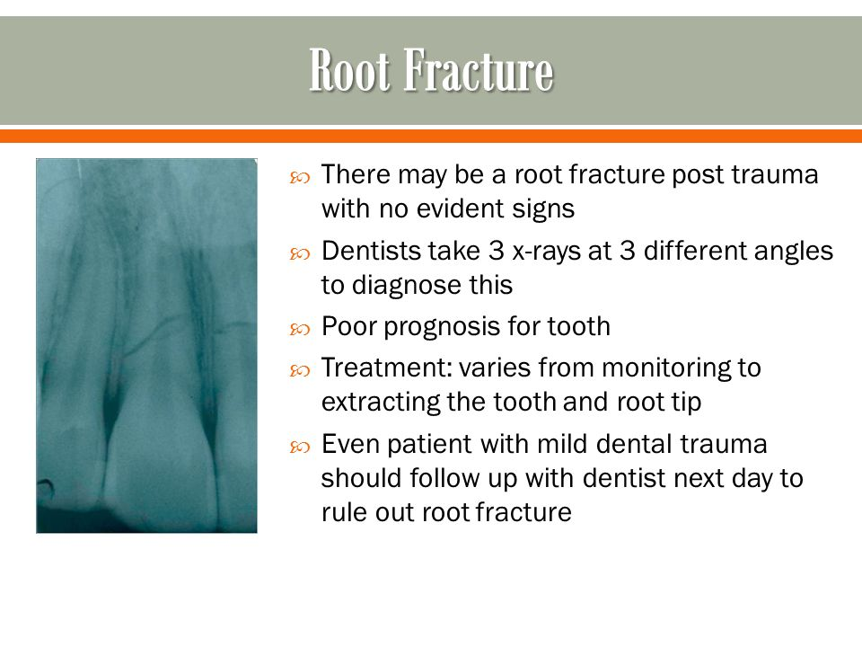 Root Fracture There may be a root fracture post trauma with no evident signs. Dentists take 3 x-rays at 3 different angles to diagnose this.