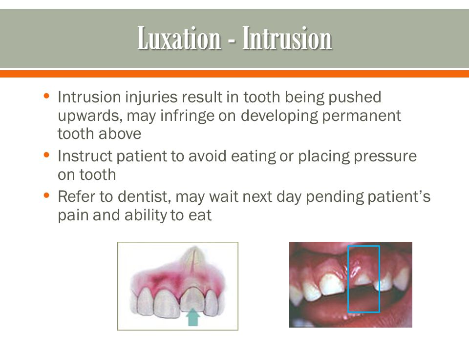 Luxation - Intrusion Intrusion injuries result in tooth being pushed upwards, may infringe on developing permanent tooth above.