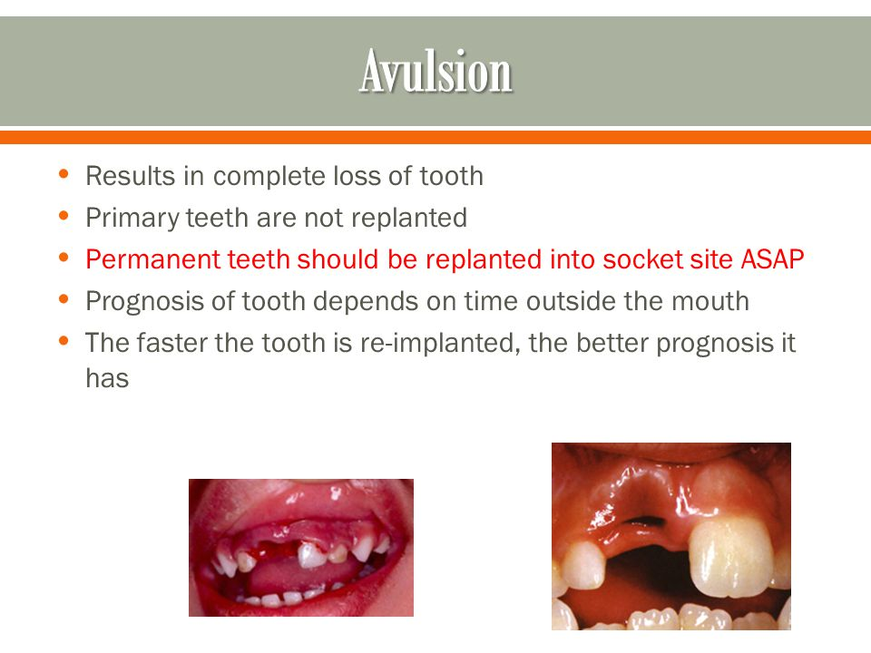 Avulsion Results in complete loss of tooth