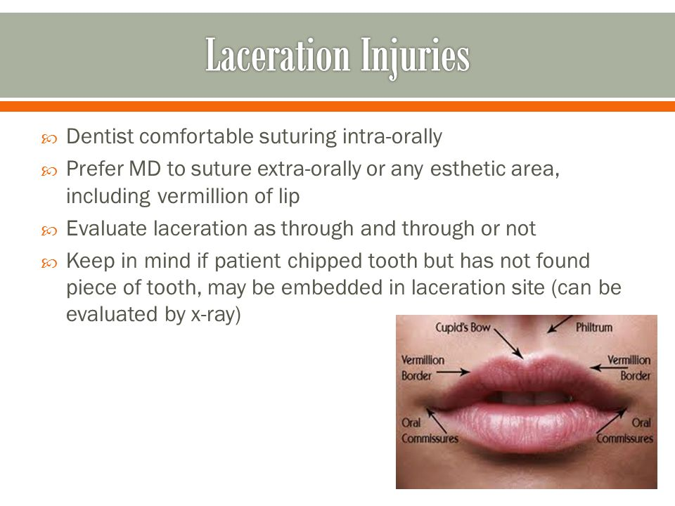 Laceration Injuries Dentist comfortable suturing intra-orally