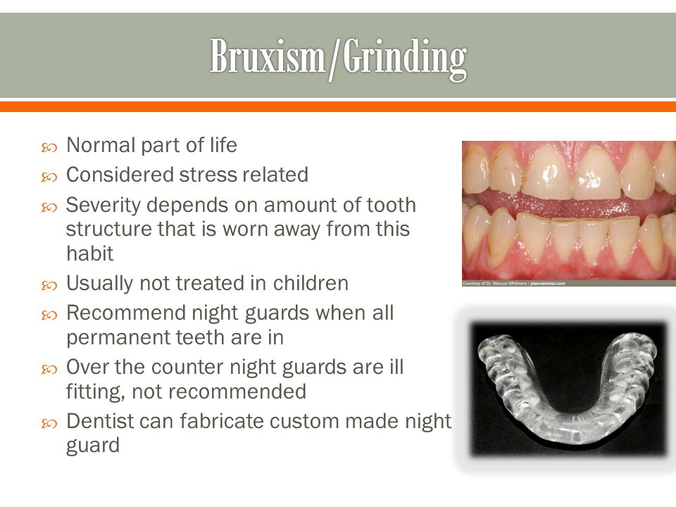 Bruxism/Grinding Normal part of life Considered stress related