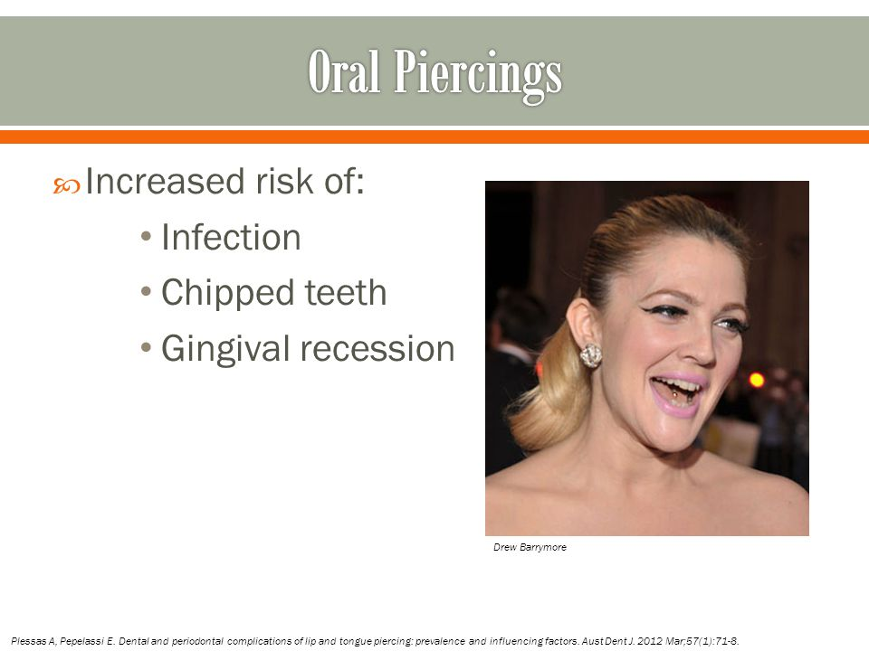 Oral Piercings Increased risk of: Infection Chipped teeth