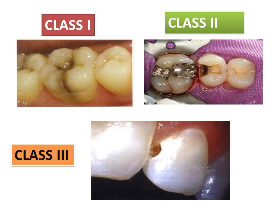 CLASS II CLASS I CLASS III