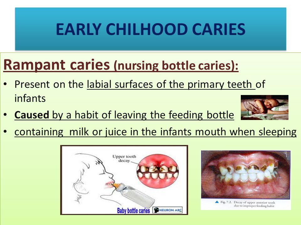 EARLY CHILHOOD CARIES Rampant caries (nursing bottle caries):