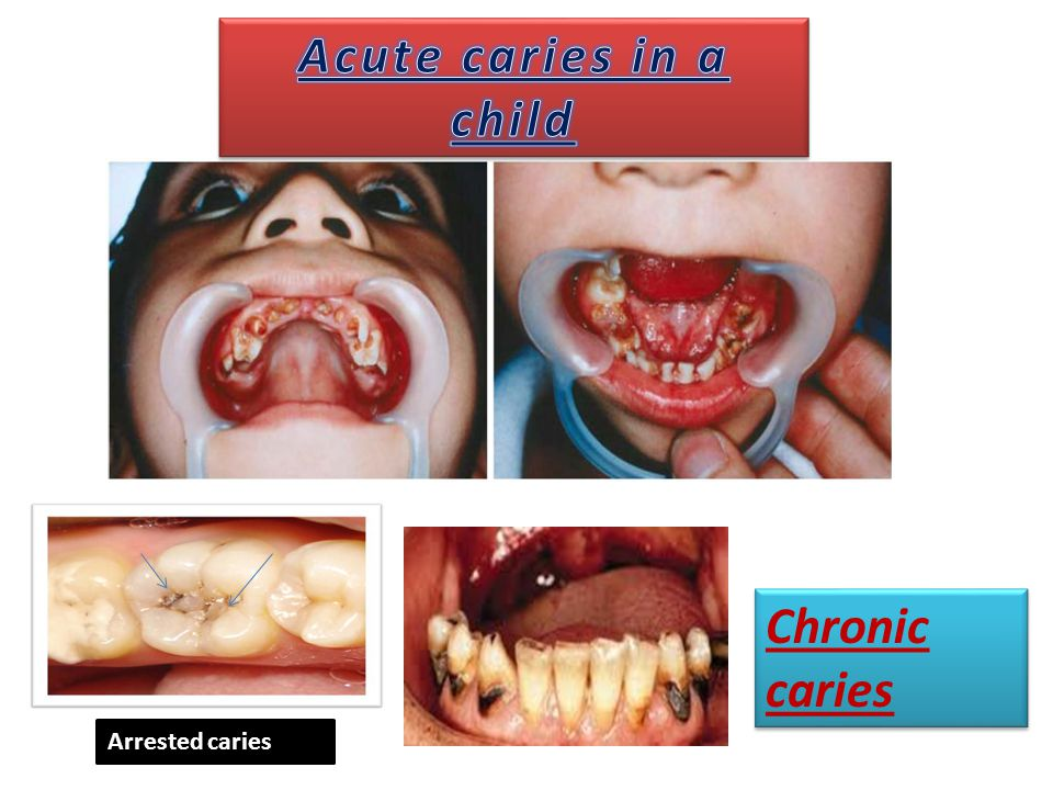Acute caries in a child Chronic caries Arrested caries