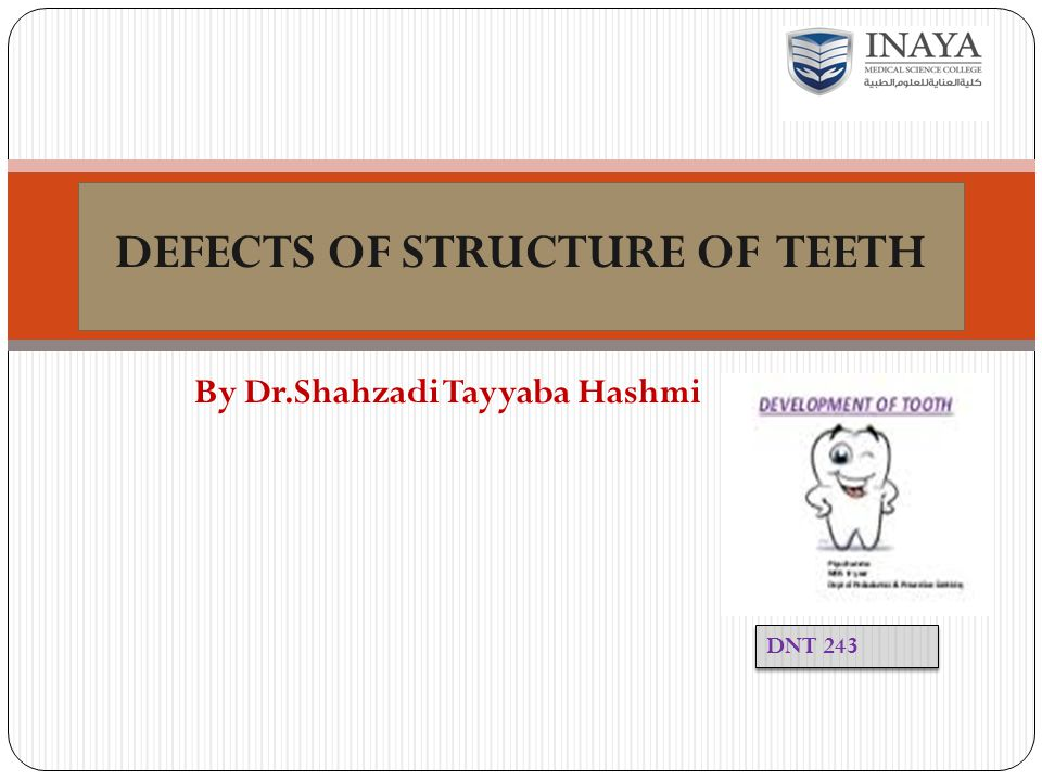 DEFECTS OF STRUCTURE OF TEETH