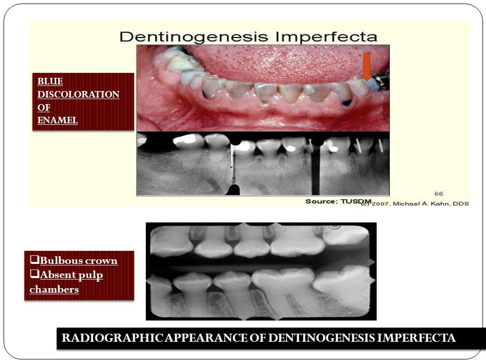 RADIOGRAPHIC APPEARANCE OF DENTINOGENESIS IMPERFECTA