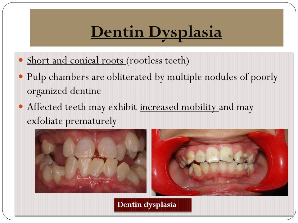 Dentin Dysplasia Short and conical roots (rootless teeth)