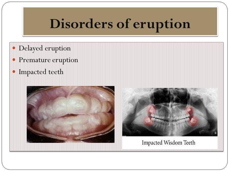 Disorders of eruption Delayed eruption Premature eruption