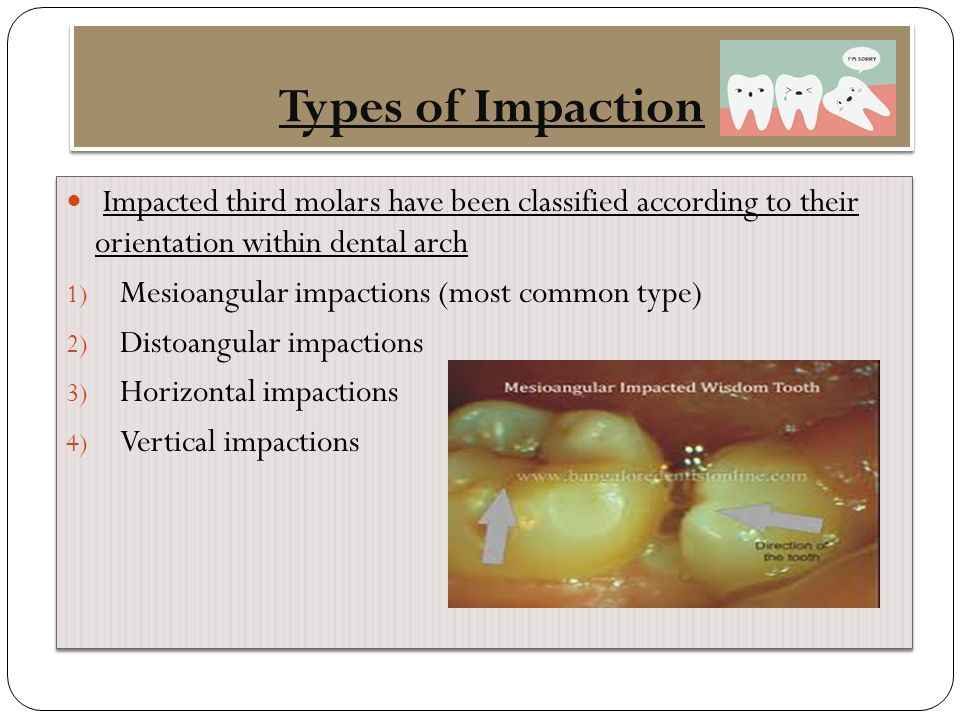 Types of Impaction Impacted third molars have been classified according to their orientation within dental arch.