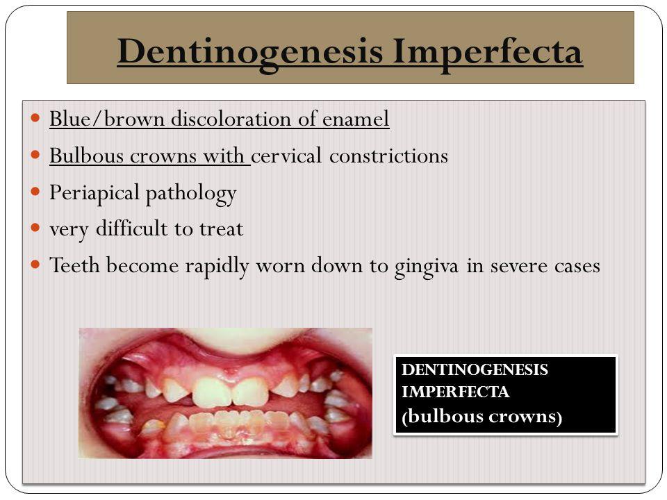 Dentinogenesis Imperfecta
