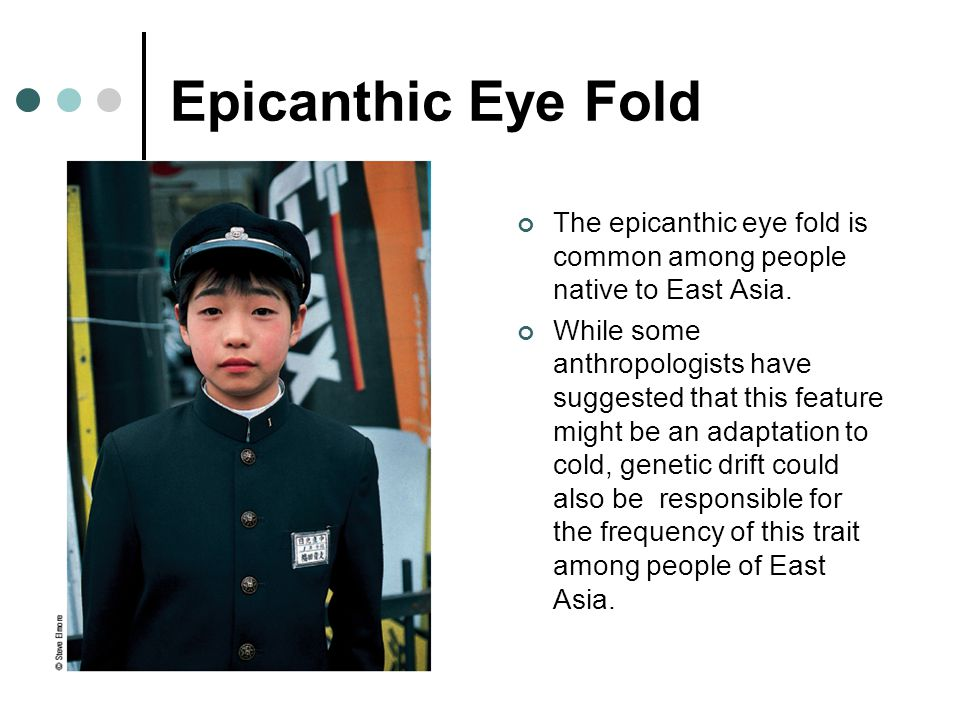 Epicanthic Eye Fold The epicanthic eye fold is common among people native to East Asia.
