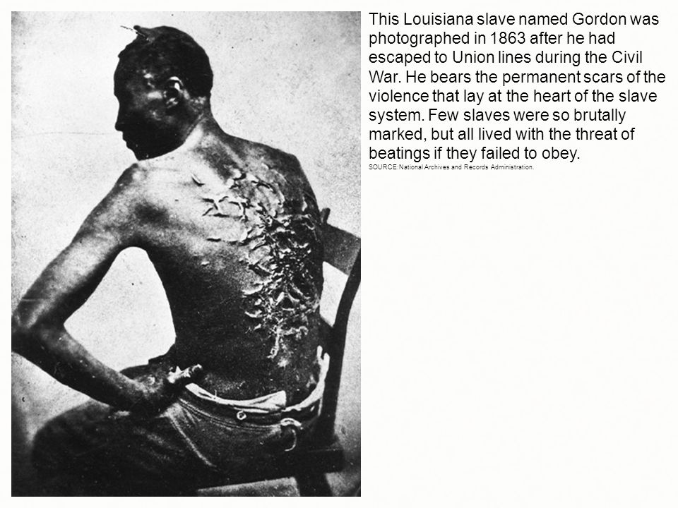 This Louisiana slave named Gordon was photographed in 1863 after he had escaped to Union lines during the Civil War. He bears the permanent scars of the violence that lay at the heart of the slave system. Few slaves were so brutally marked, but all lived with the threat of beatings if they failed to obey.