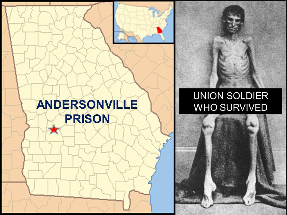UNION SOLDIER WHO SURVIVED ANDERSONVILLE PRISON