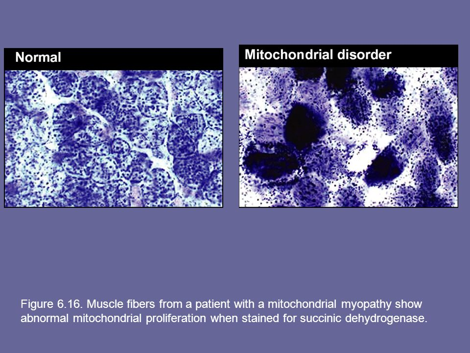 Figure 6.16. Muscle fibers from a patient with a mitochondrial myopathy show