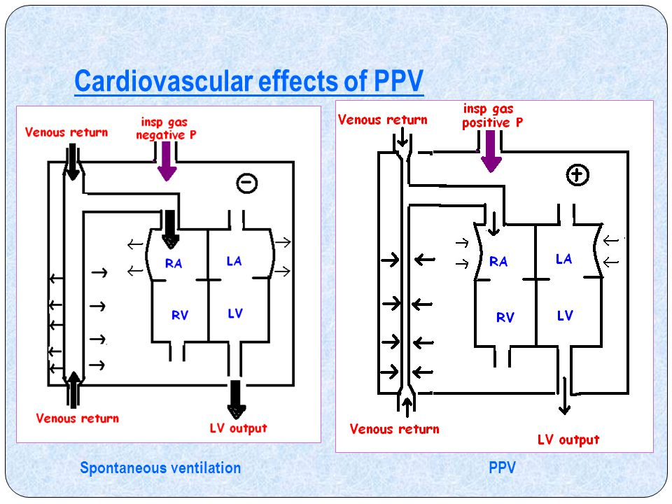 Cardiovascular effects of PPV