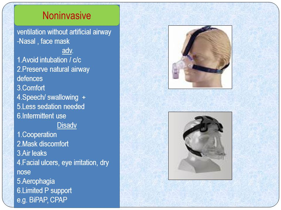 Noninvasive ventilation without artificial airway Nasal , face mask