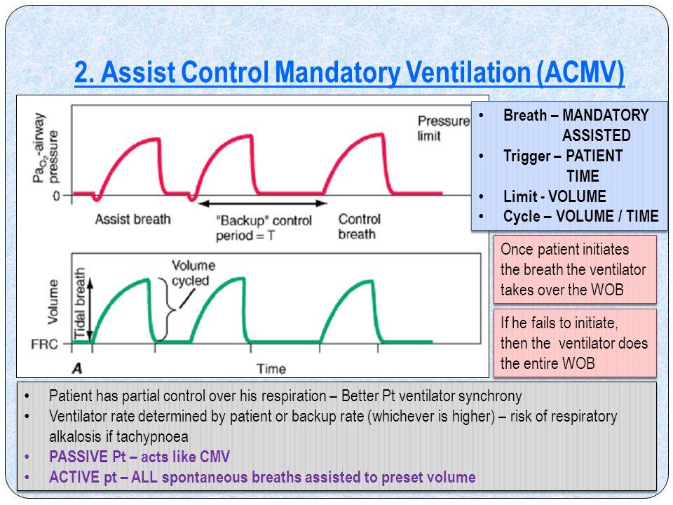 2. Assist Control Mandatory Ventilation (ACMV)