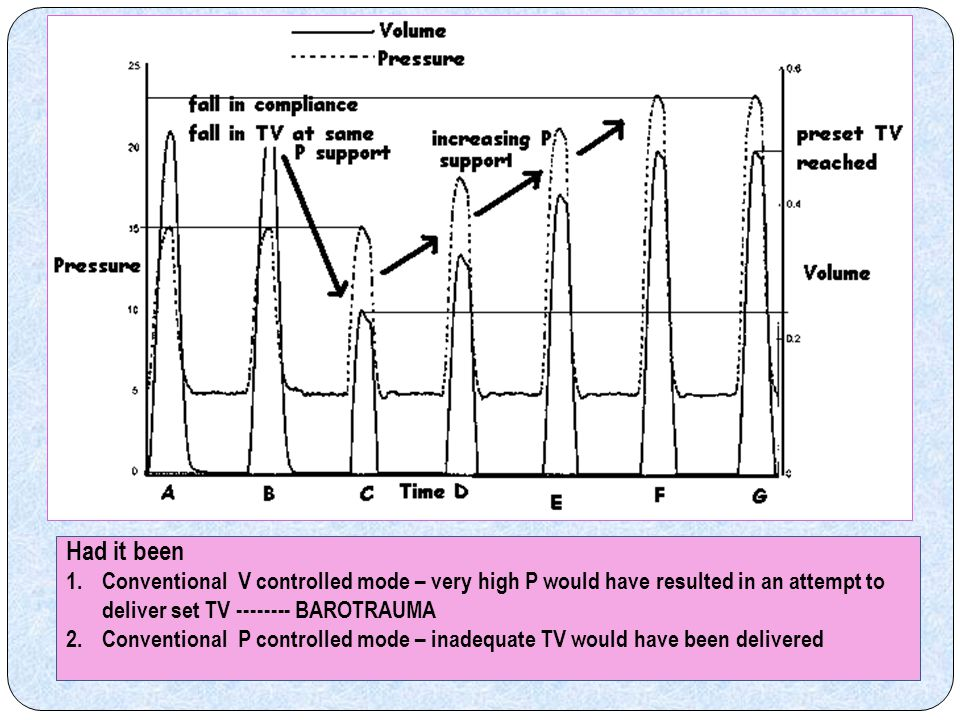 Had it been Conventional V controlled mode – very high P would have resulted in an attempt to deliver set TV -------- BAROTRAUMA.