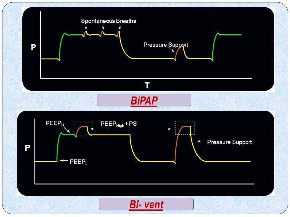 BiPAP Bi- vent