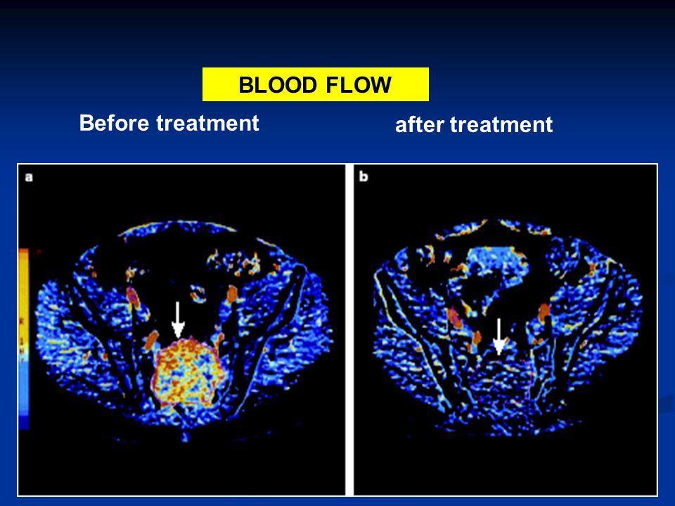 BLOOD FLOW Before treatment after treatment