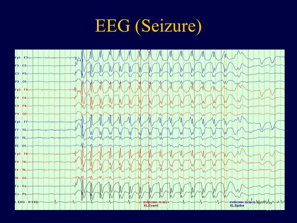 EEG (Seizure)