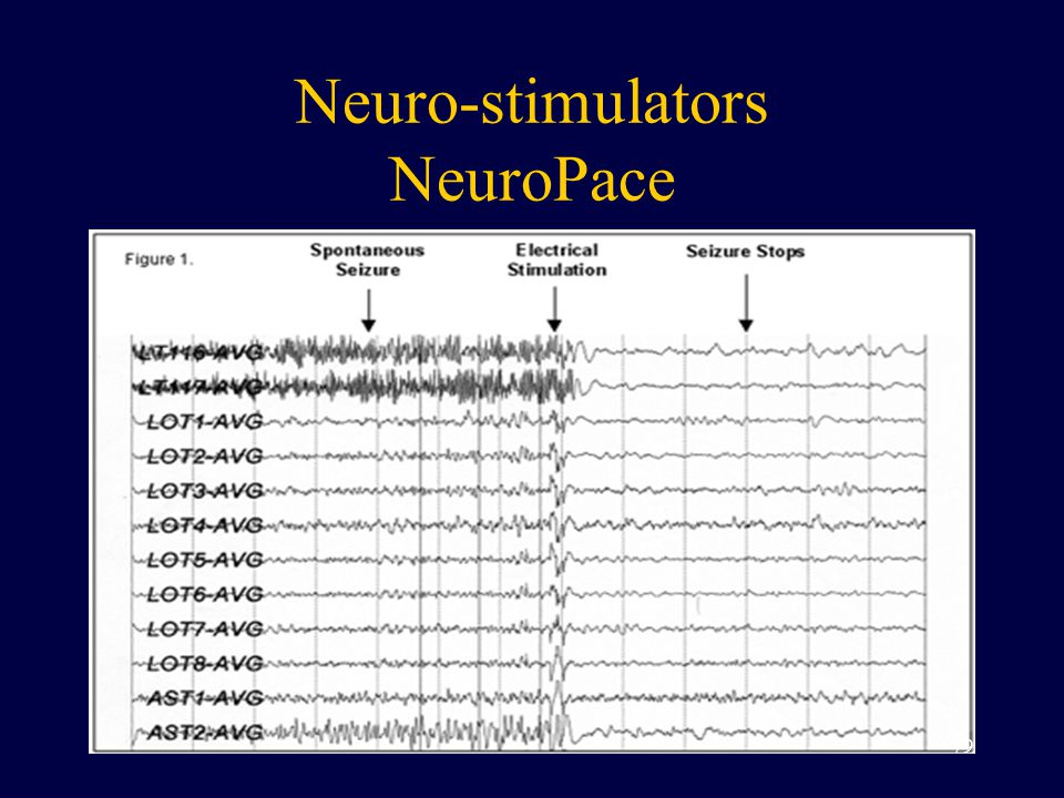Neuro-stimulators NeuroPace