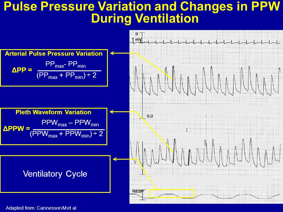 Pulse Pressure Variation and Changes in PPW During Ventilation