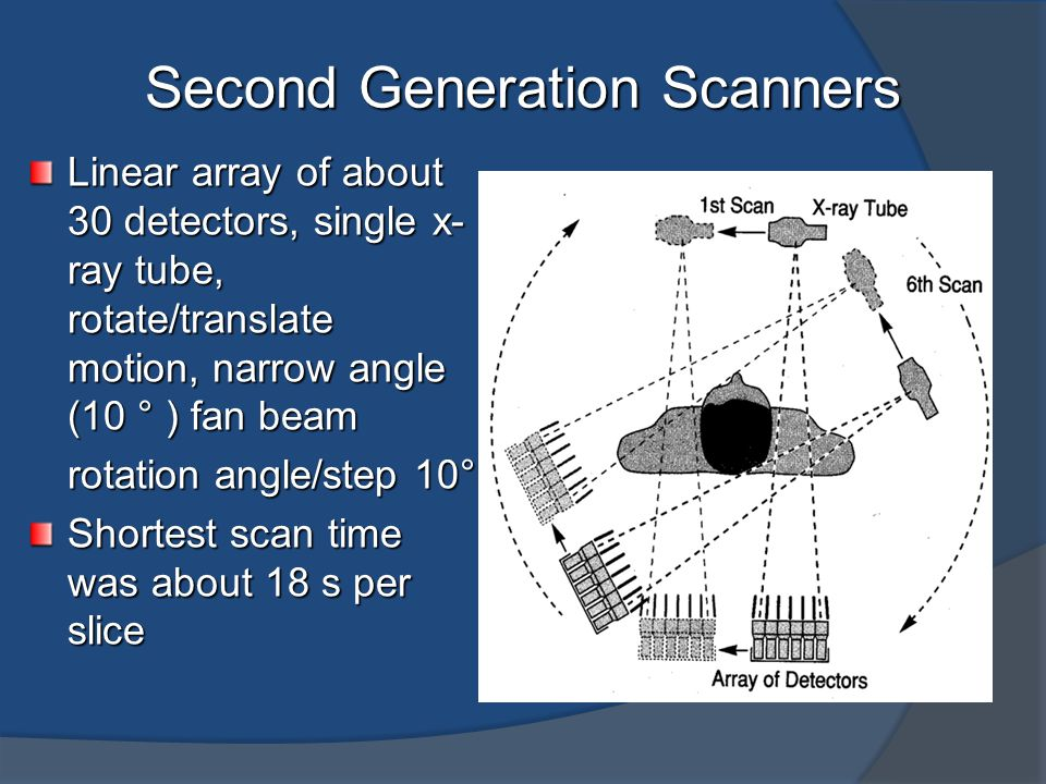 Second Generation Scanners