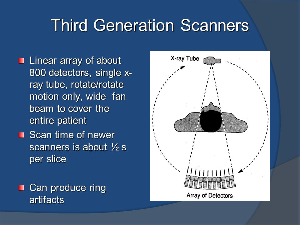 Third Generation Scanners
