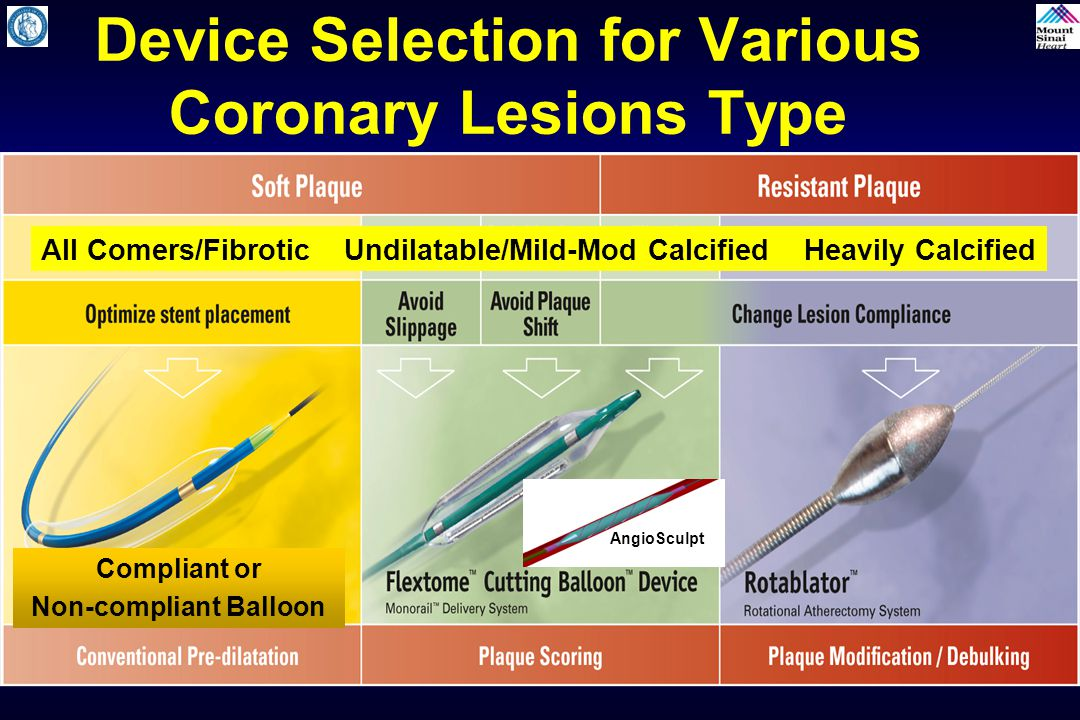 Device Selection for Various Coronary Lesions Type